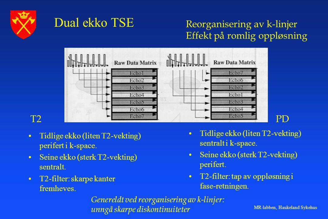 Dual ekko TSE Reorganisering av k-linjer Effekt på romlig oppløsning