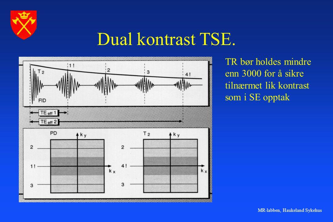 Dual kontrast TSE. TR bør holdes mindre enn 3000 for å sikre
