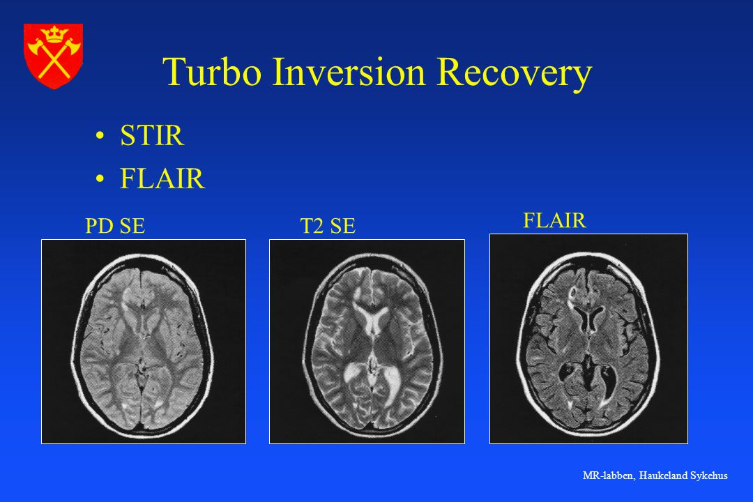 Turbo Inversion Recovery