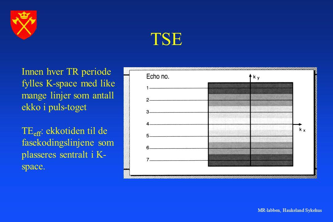 TSE Innen hver TR periode fylles K-space med like