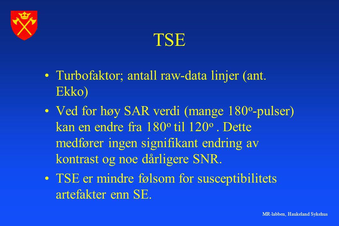 TSE Turbofaktor; antall raw-data linjer (ant. Ekko)