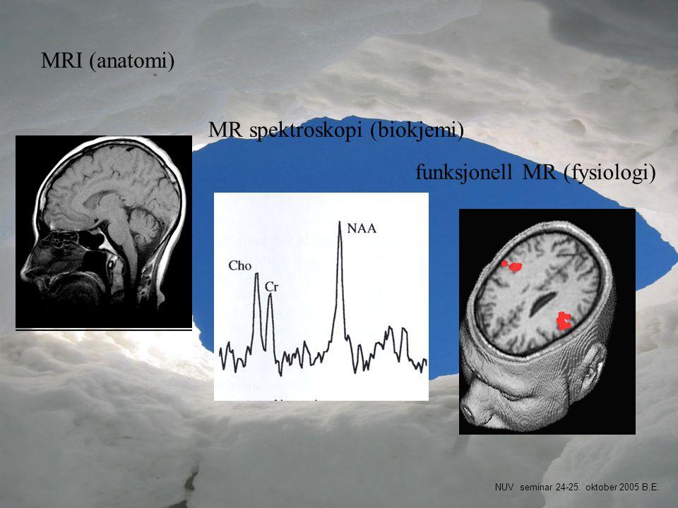 MR spektroskopi (biokjemi)