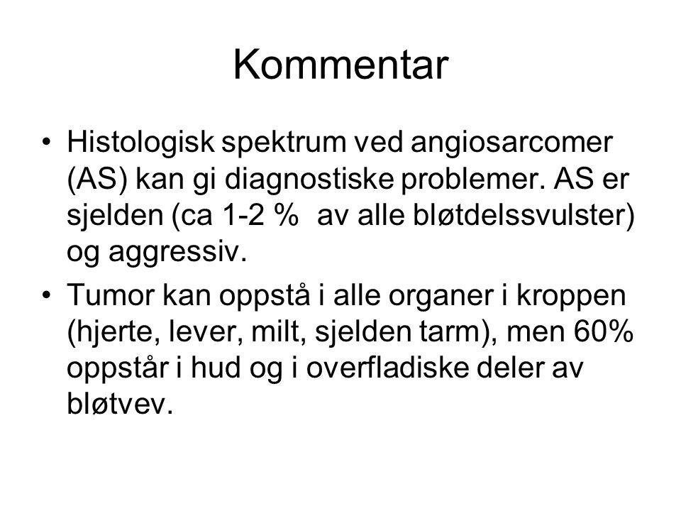 Kommentar Histologisk spektrum ved angiosarcomer (AS) kan gi diagnostiske problemer. AS er sjelden (ca 1-2 % av alle bløtdelssvulster) og aggressiv.