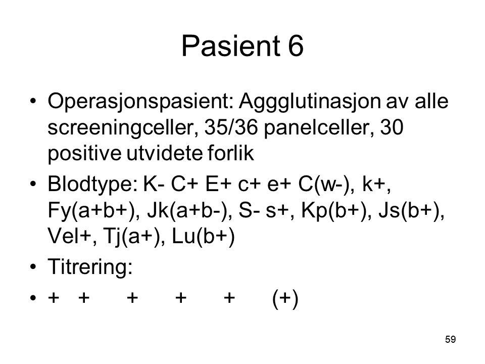 Pasient 6 Operasjonspasient: Aggglutinasjon av alle screeningceller, 35/36 panelceller, 30 positive utvidete forlik.