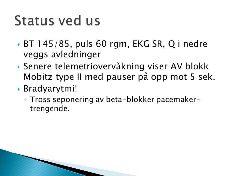 Status ved us BT 145/85, puls 60 rgm, EKG SR, Q i nedre veggs avledninger.