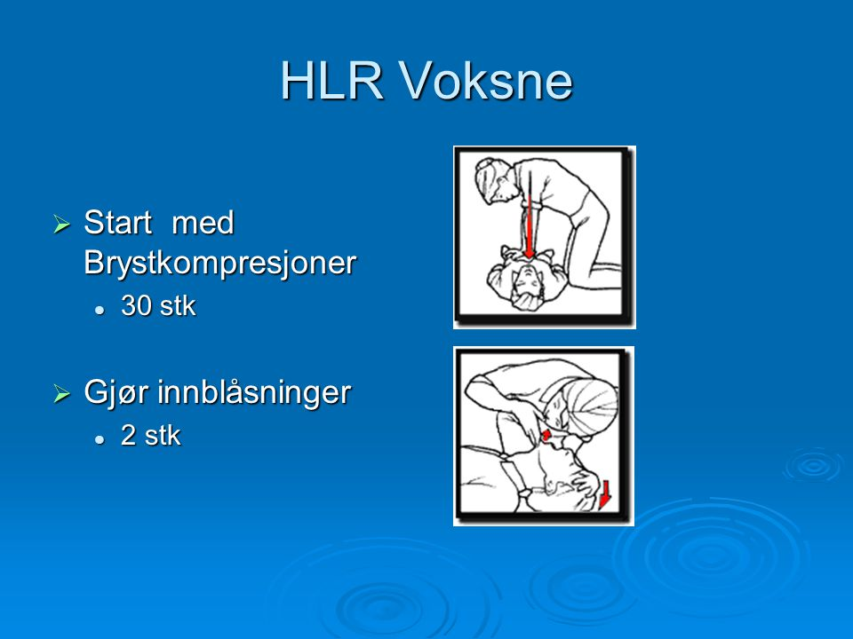 HLR Voksne Start med Brystkompresjoner 30 stk Gjør innblåsninger 2 stk