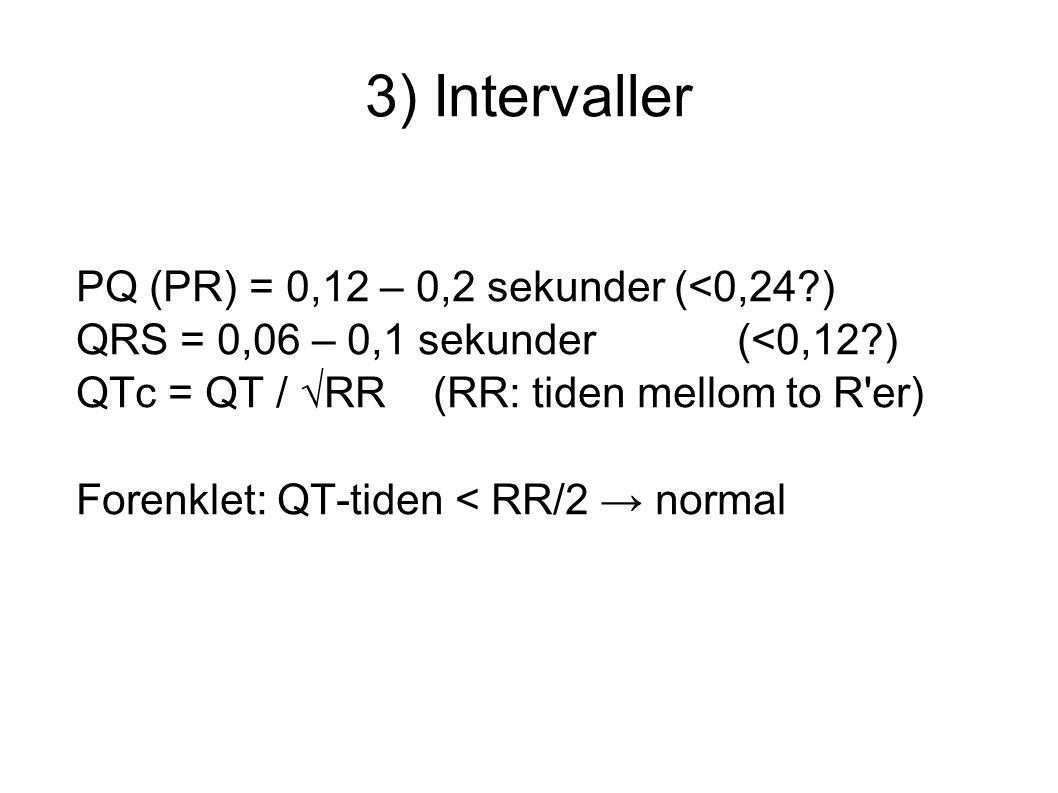 3) Intervaller PQ (PR) = 0,12 – 0,2 sekunder (<0,24 )