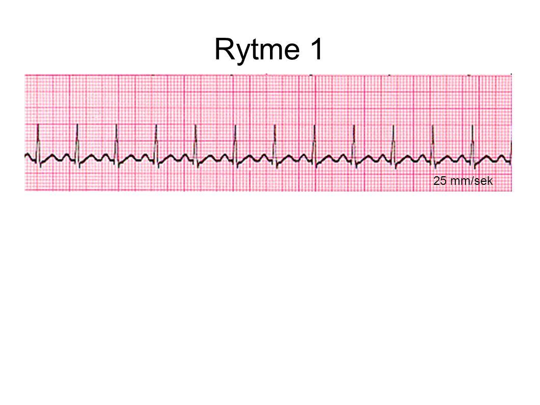 Rytme 1 1) Sinus tachykardi Normale intervaller 2) Sinus bradykardi
