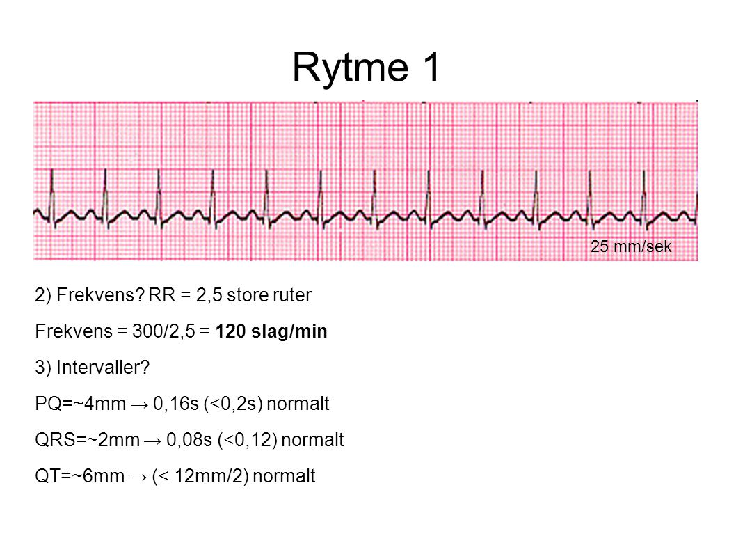 Rytme 1 2) Frekvens RR = 2,5 store ruter