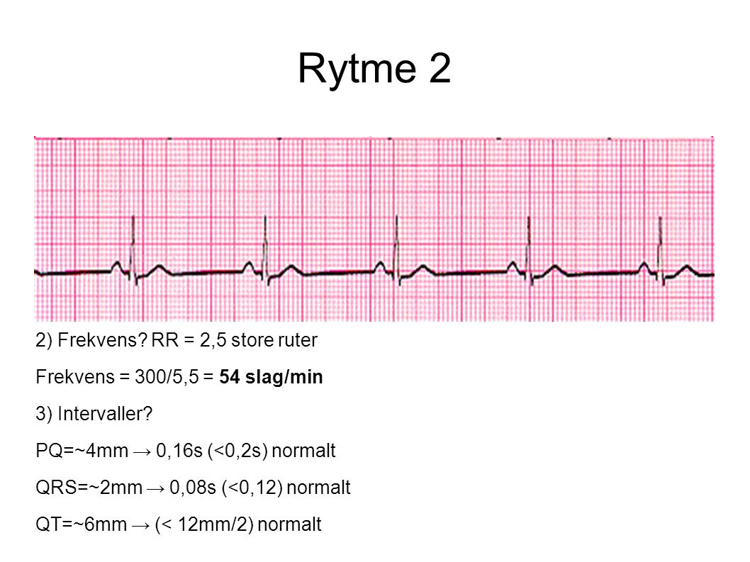Rytme 2 2) Frekvens RR = 2,5 store ruter