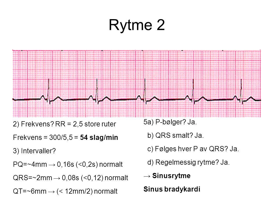 Rytme 2 5a) P-bølger Ja. 2) Frekvens RR = 2,5 store ruter