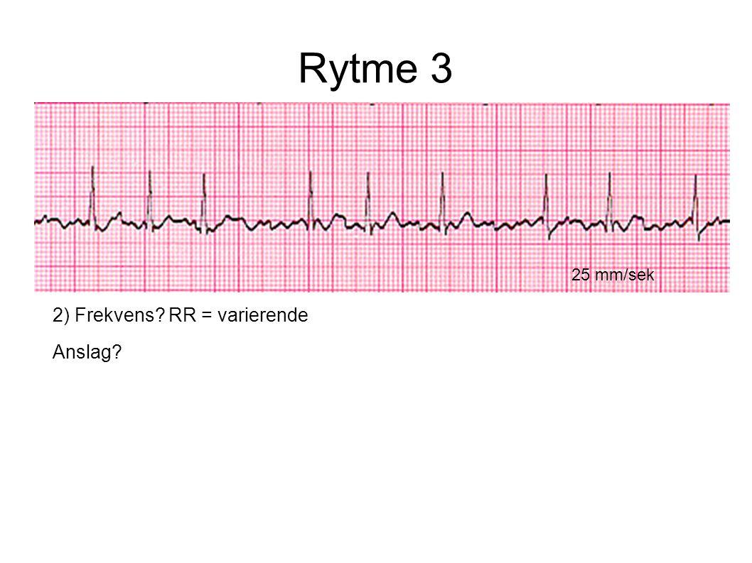 Rytme 3 25 mm/sek 2) Frekvens RR = varierende Anslag
