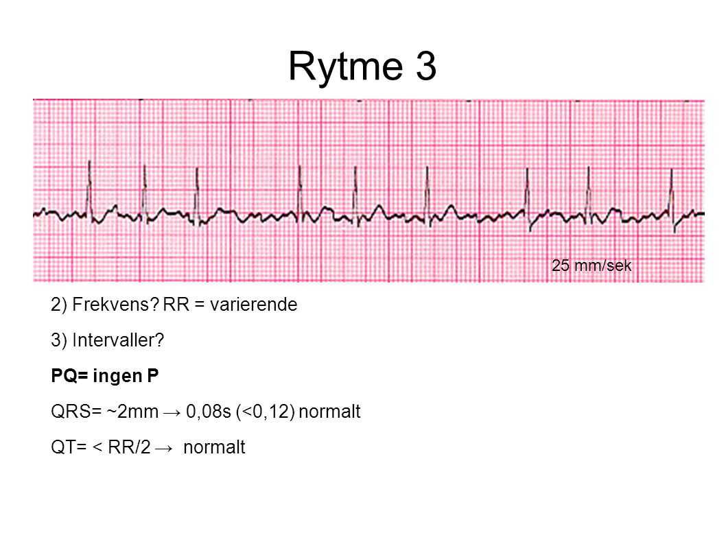 Rytme 3 2) Frekvens RR = varierende 3) Intervaller PQ= ingen P