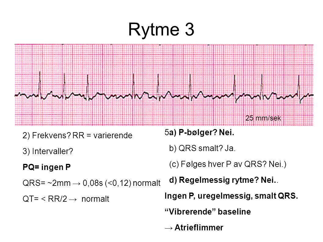 Rytme 3 5a) P-bølger Nei. 2) Frekvens RR = varierende