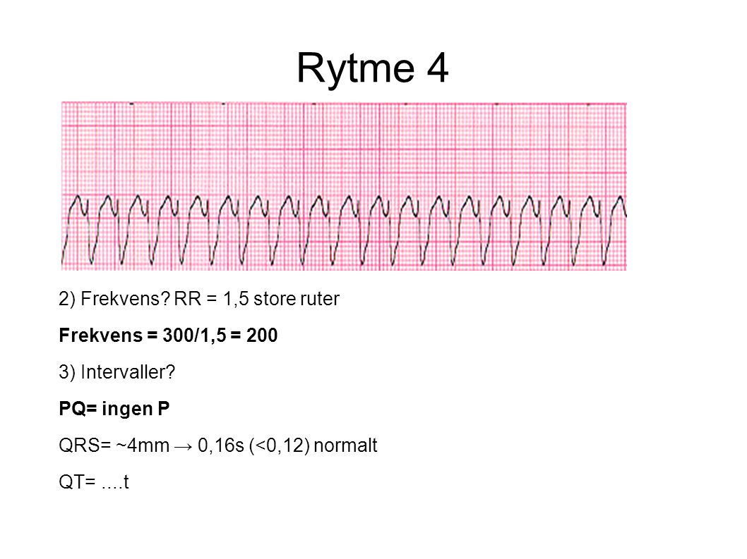 Rytme 4 2) Frekvens RR = 1,5 store ruter Frekvens = 300/1,5 = 200