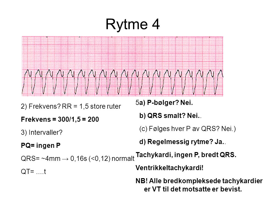 Rytme 4 5a) P-bølger Nei. 2) Frekvens RR = 1,5 store ruter