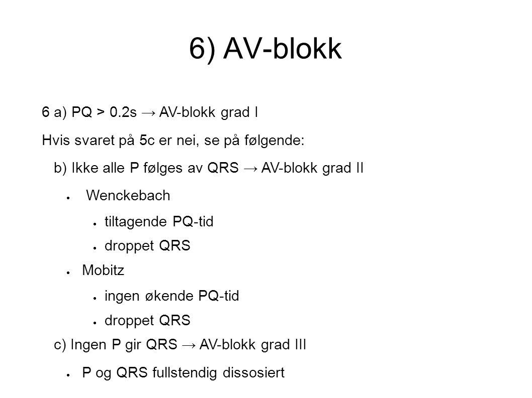 6) AV-blokk 6 a) PQ > 0.2s → AV-blokk grad I