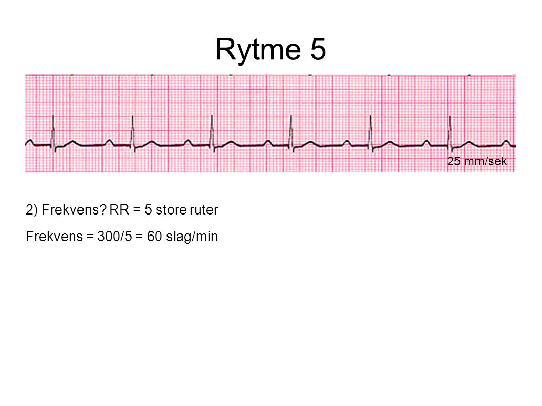 Rytme 5 2) Frekvens RR = 5 store ruter Frekvens = 300/5 = 60 slag/min