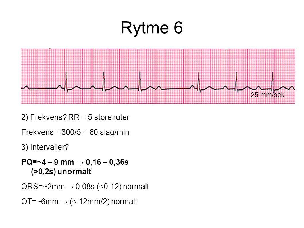 Rytme 6 2) Frekvens RR = 5 store ruter Frekvens = 300/5 = 60 slag/min