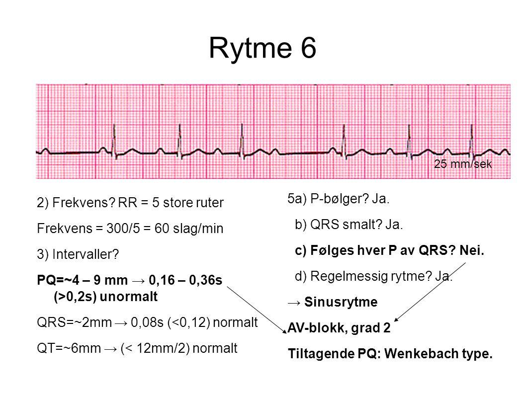 Rytme 6 5a) P-bølger Ja. 2) Frekvens RR = 5 store ruter