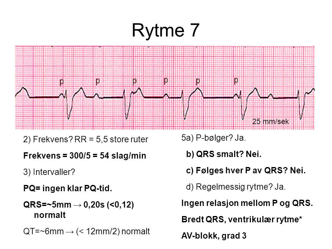 Rytme 7 5a) P-bølger Ja. 2) Frekvens RR = 5,5 store ruter