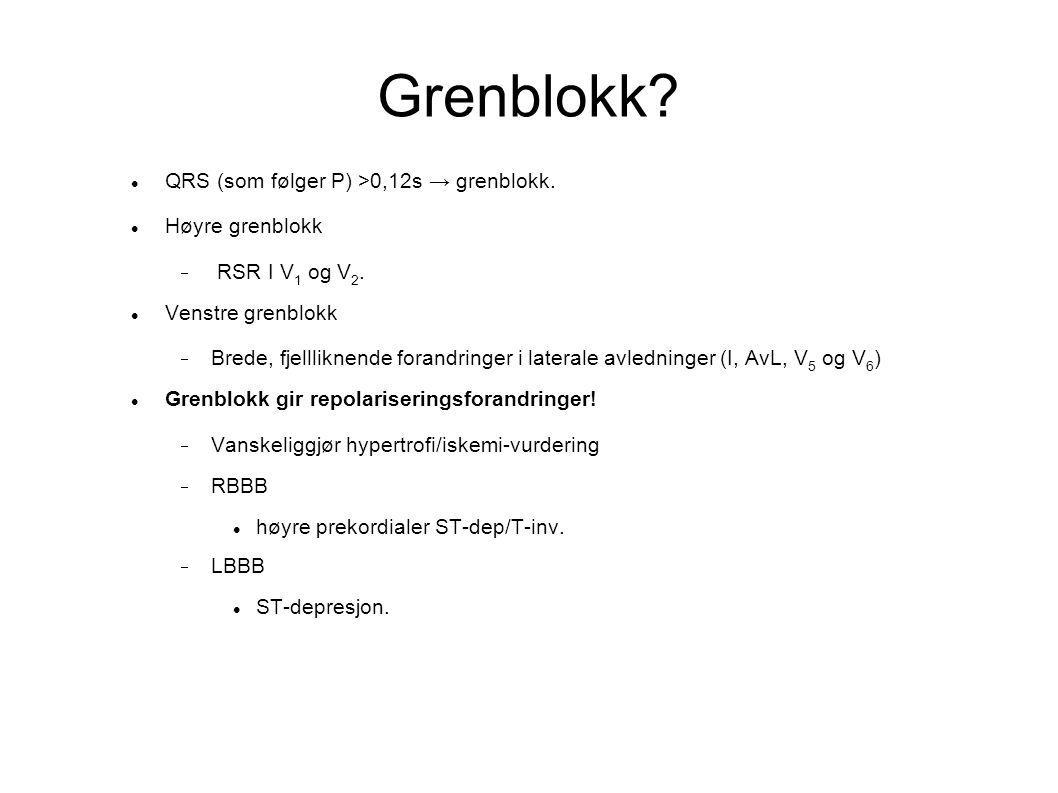 Grenblokk QRS (som følger P) >0,12s → grenblokk. Høyre grenblokk
