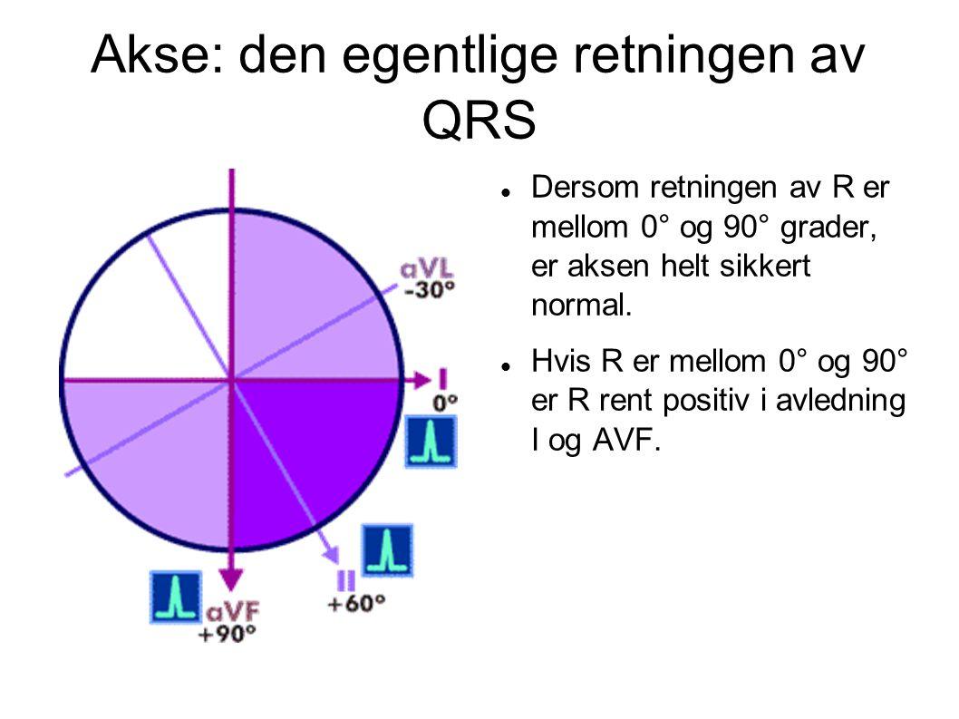 Akse: den egentlige retningen av QRS