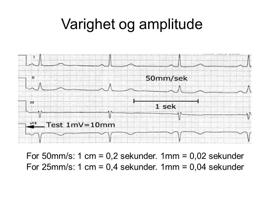 Varighet og amplitude 25 mm vs. 50 mm. Absolutt vanligst med 50 mm på sykehus: MEN sjekk alltid papirhastigheten.