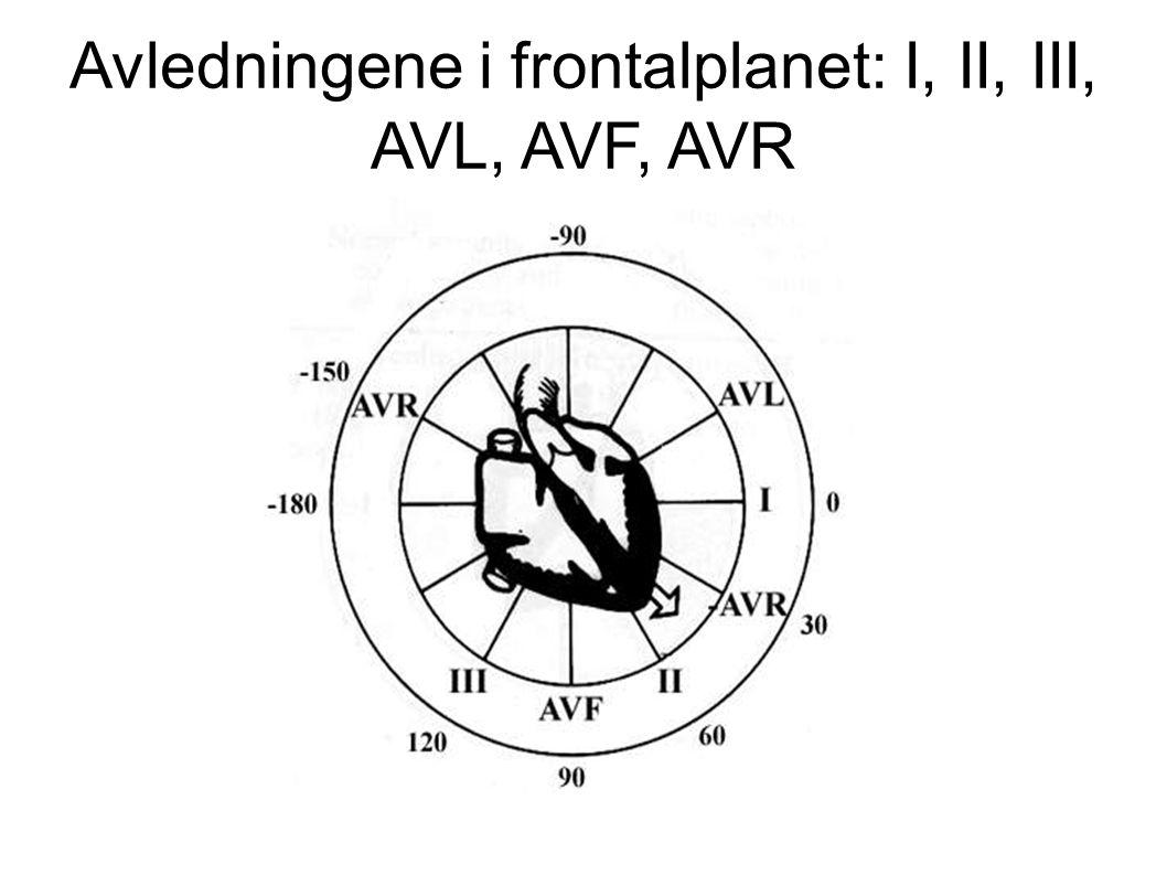 Avledningene i frontalplanet: I, II, III, AVL, AVF, AVR