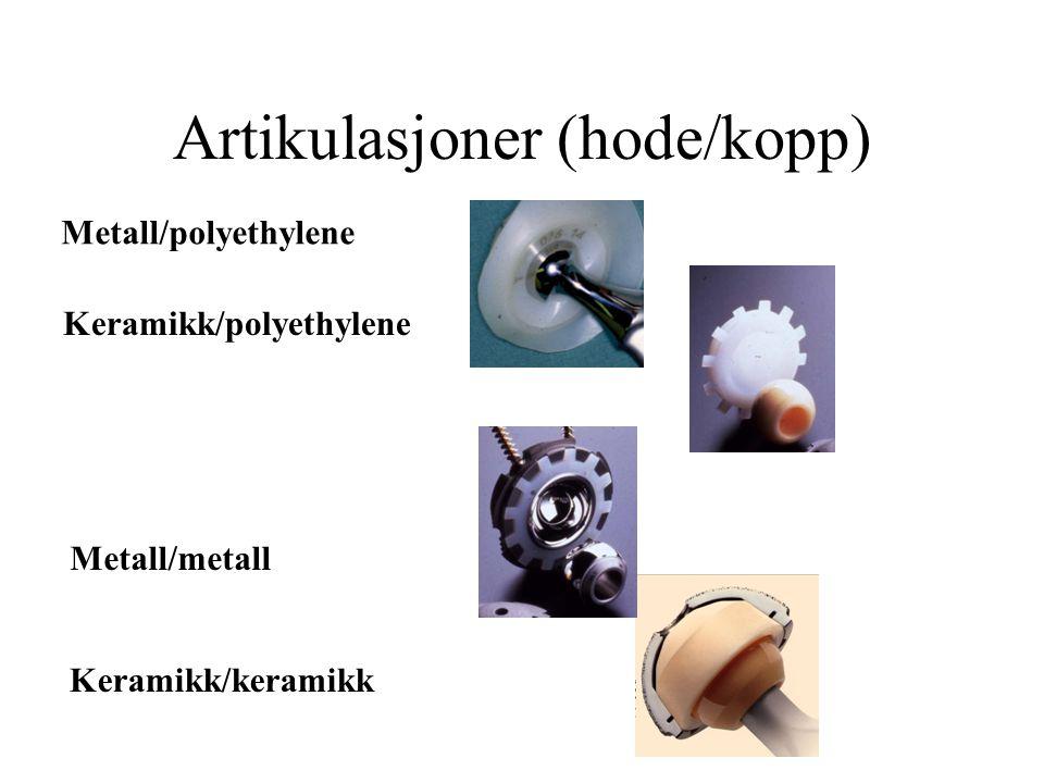 Artikulasjoner (hode/kopp)