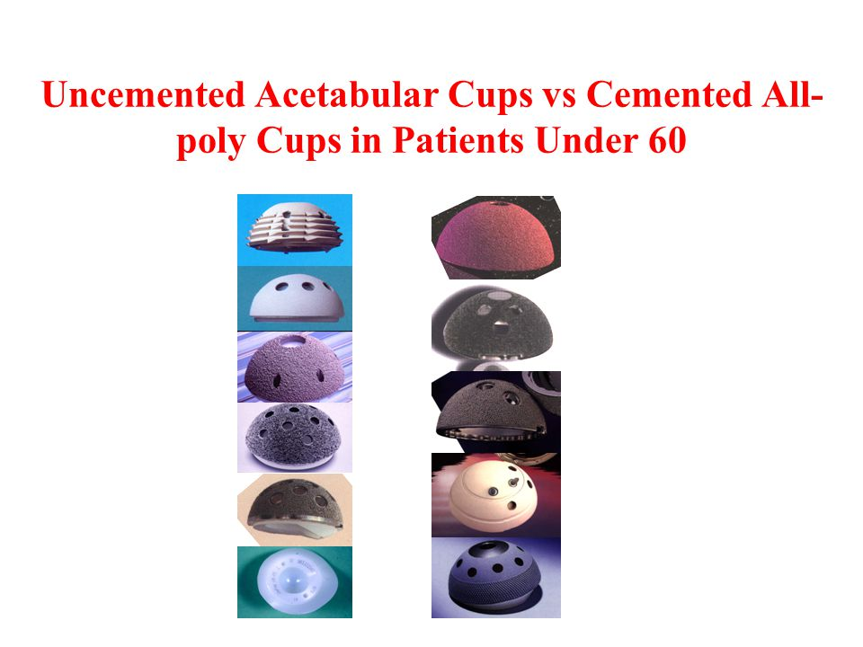 Uncemented Acetabular Cups vs Cemented All-poly Cups in Patients Under 60