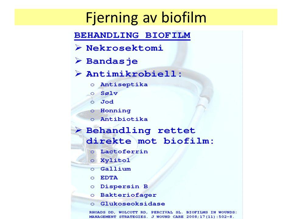 Fjerning av biofilm