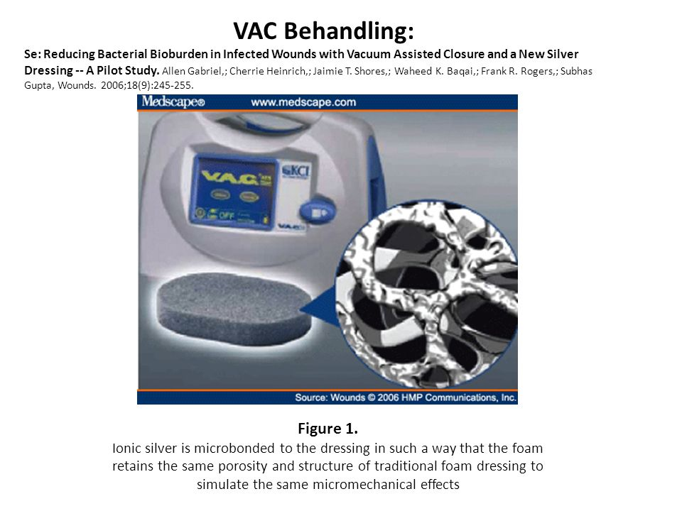 VAC Behandling: Figure 1.