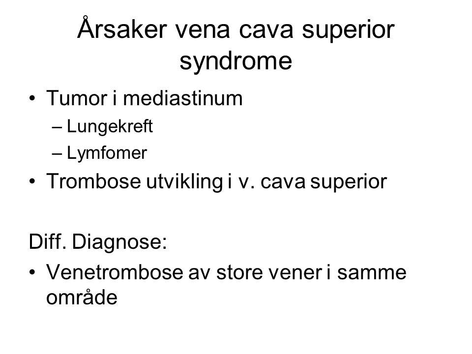 Årsaker vena cava superior syndrome
