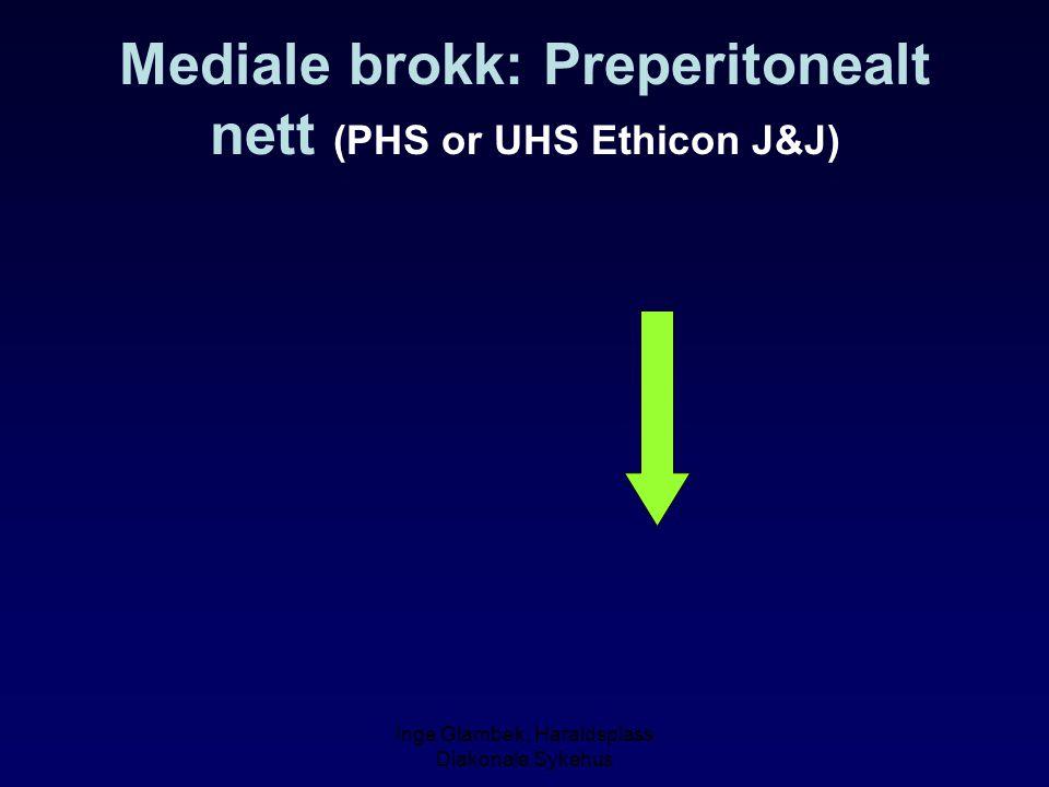 Mediale brokk: Preperitonealt nett (PHS or UHS Ethicon J&J)