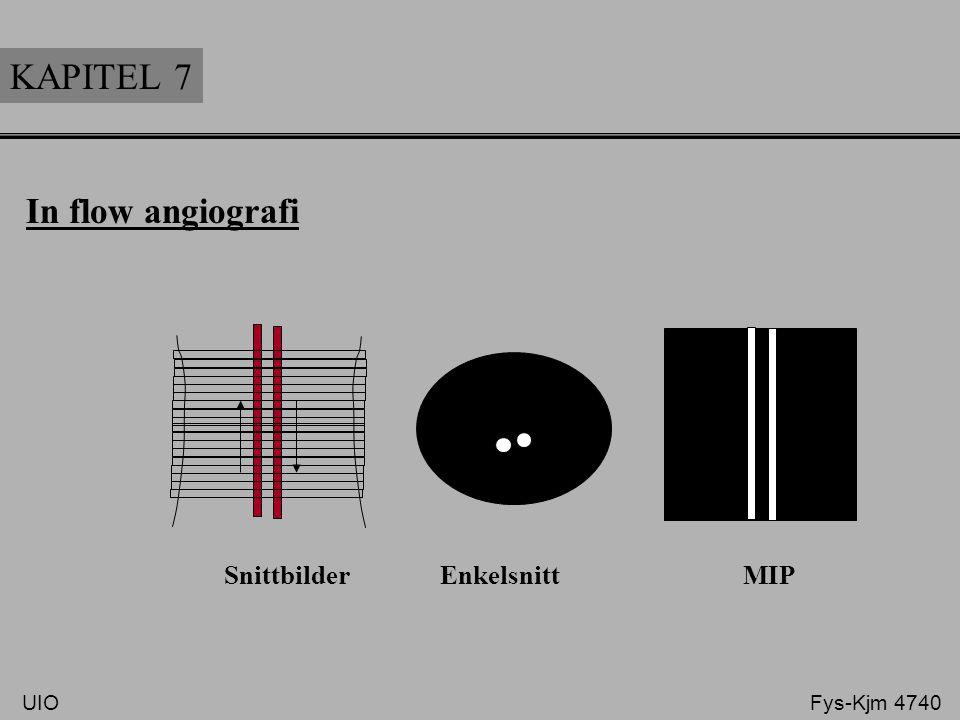 KAPITEL 7 In flow angiografi Snittbilder Enkelsnitt MIP