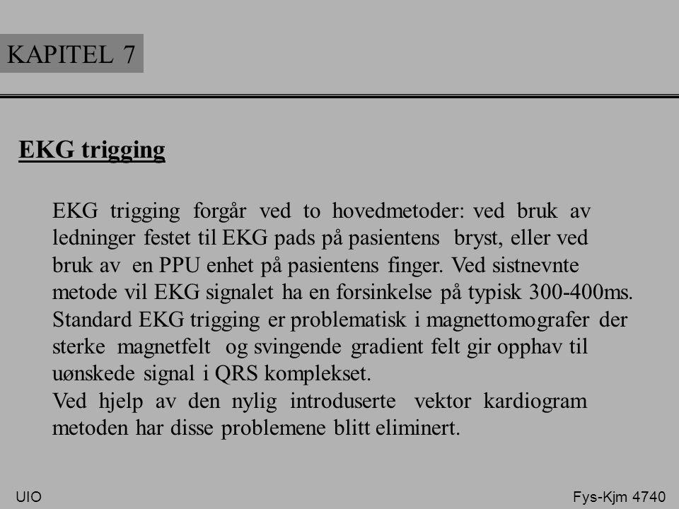 KAPITEL 7 EKG trigging. EKG trigging forgår ved to hovedmetoder: ved bruk av. ledninger festet til EKG pads på pasientens bryst, eller ved.