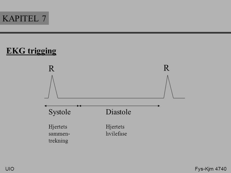 KAPITEL 7 R R EKG trigging Systole Diastole Hjertets Hjertets
