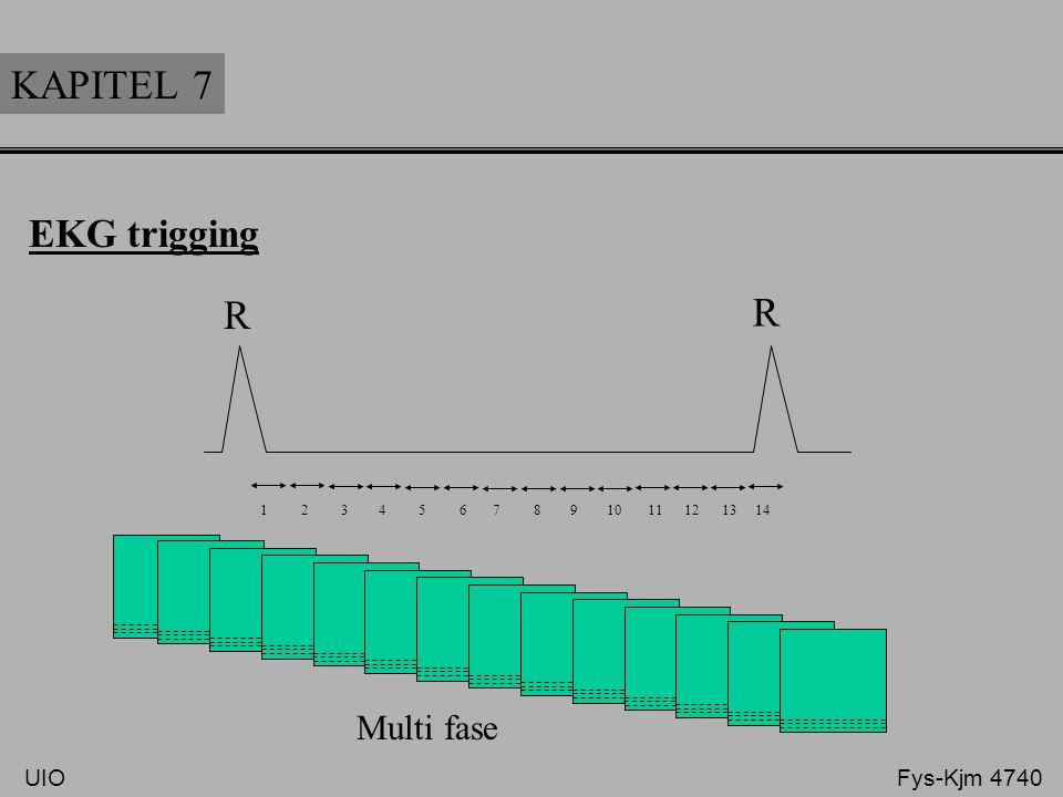 KAPITEL 7 R R EKG trigging Multi fase UIO Fys-Kjm 4740