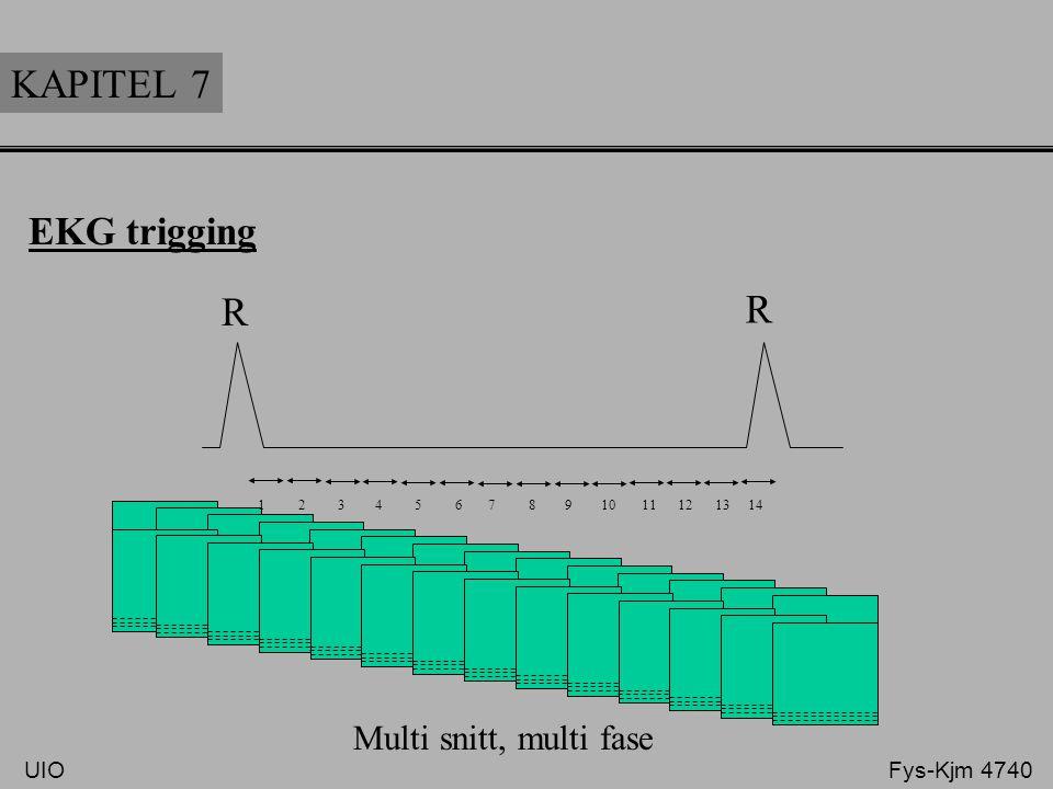 KAPITEL 7 R R EKG trigging Multi snitt, multi fase UIO Fys-Kjm 4740