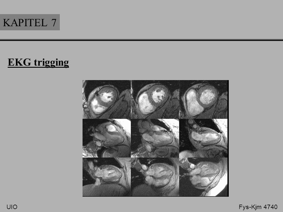 KAPITEL 7 EKG trigging.