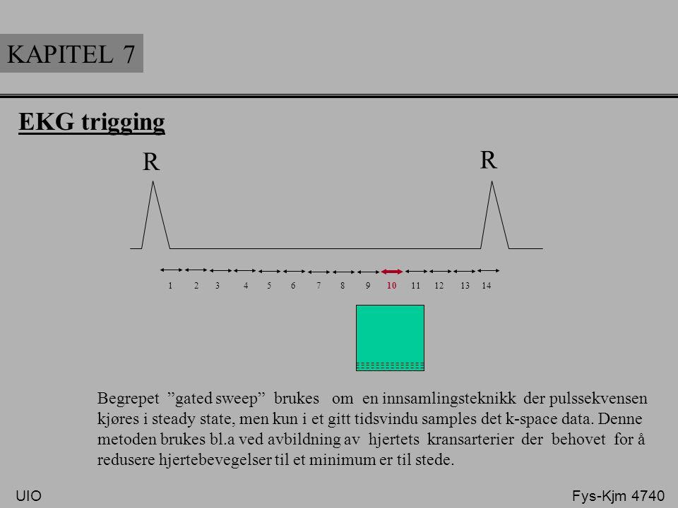KAPITEL 7 R R EKG trigging