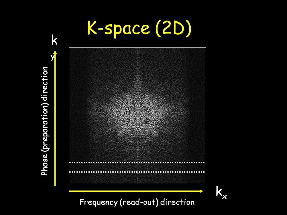 K-space (2D) ky kx Phase (preparation) direction