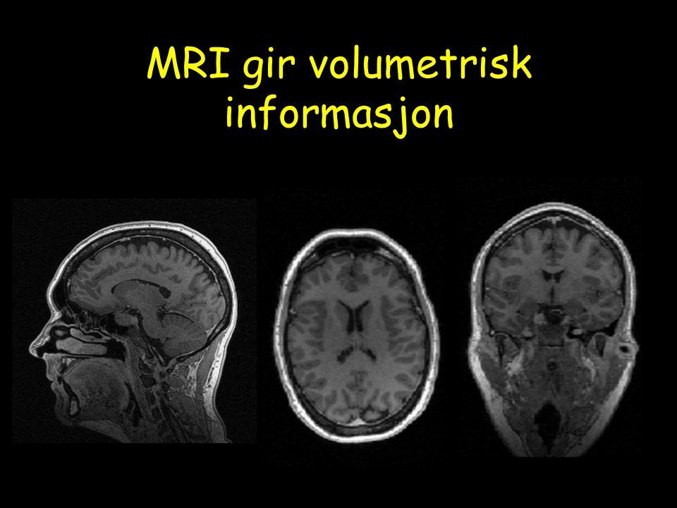 MRI gir volumetrisk informasjon