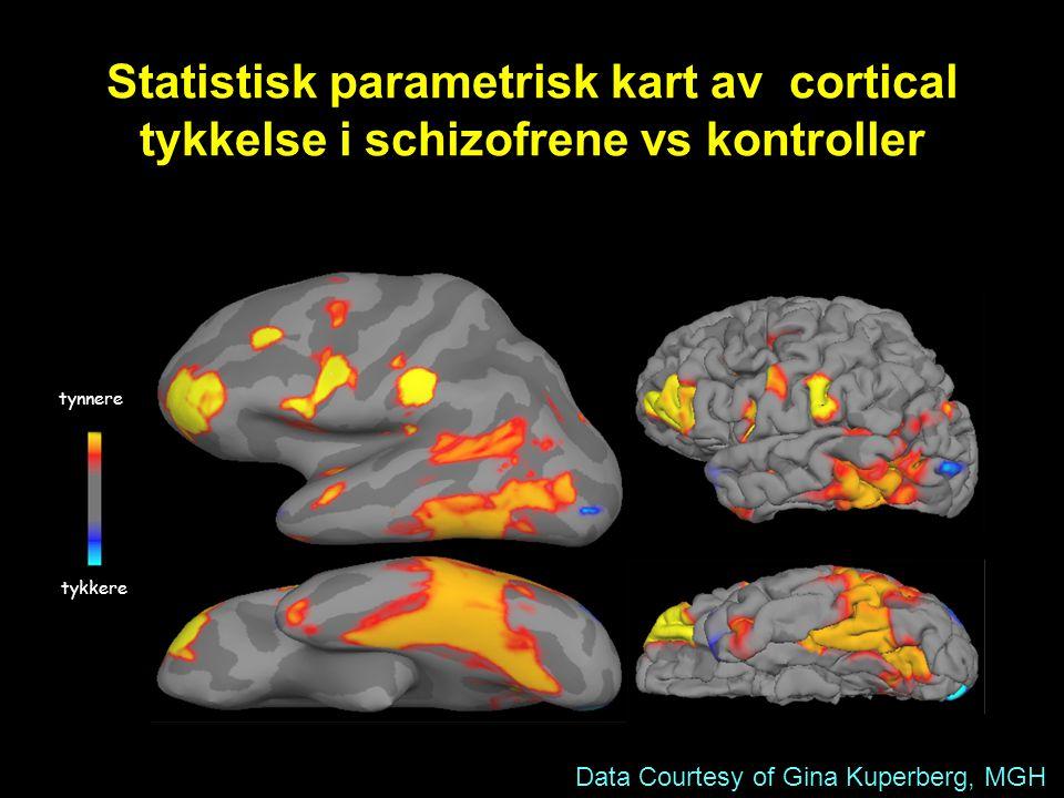 Statistisk parametrisk kart av cortical tykkelse i schizofrene vs kontroller
