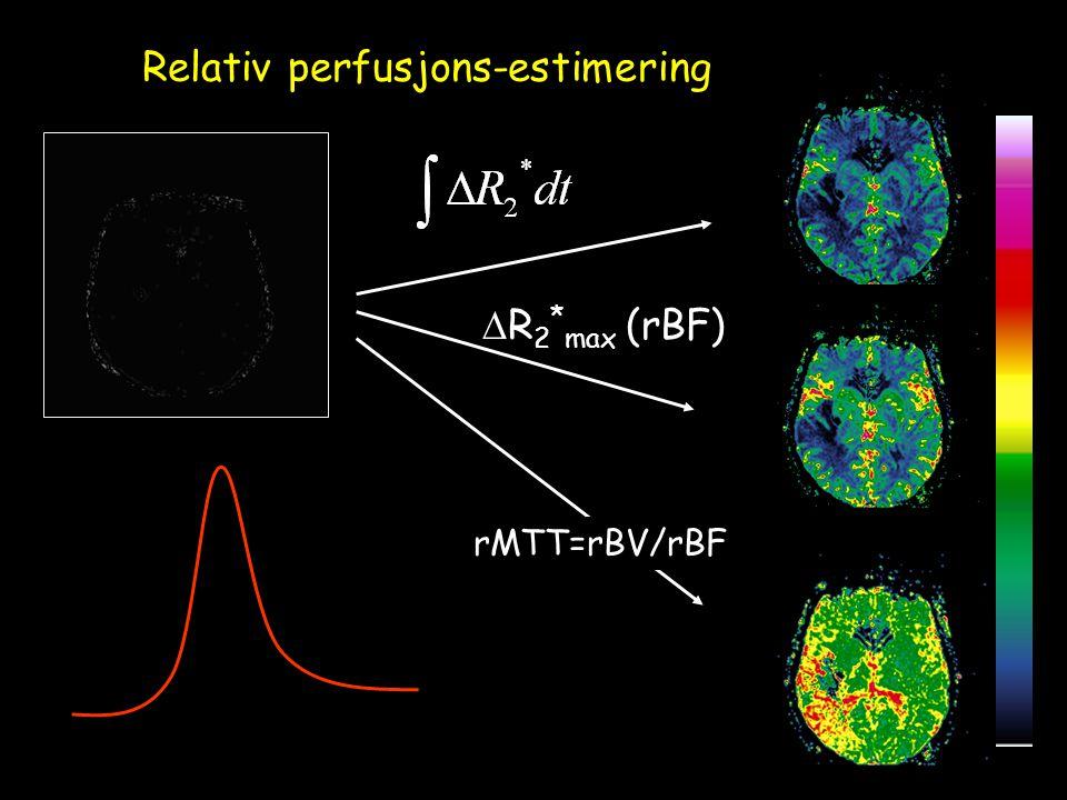 Relativ perfusjons-estimering