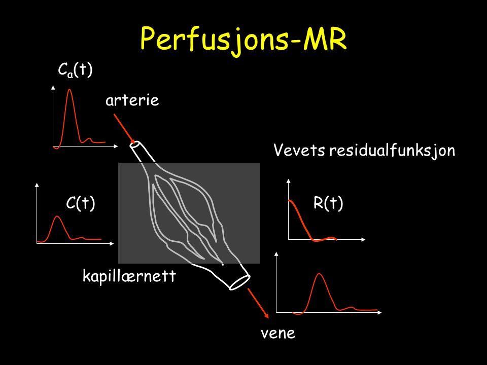 Perfusjons-MR Ca(t) arterie Vevets residualfunksjon C(t) R(t)