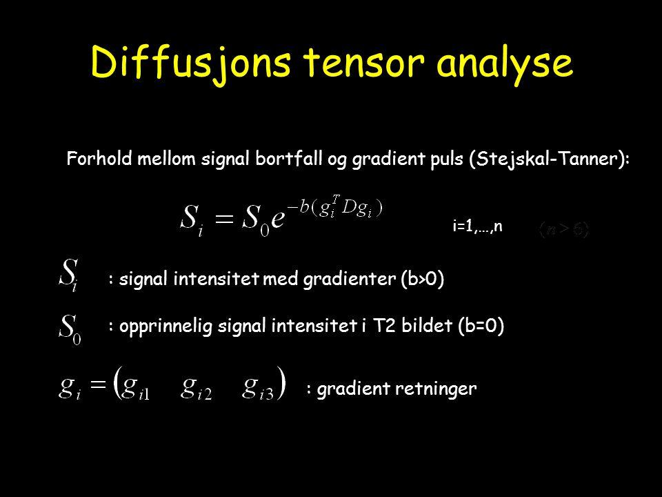 Diffusjons tensor analyse