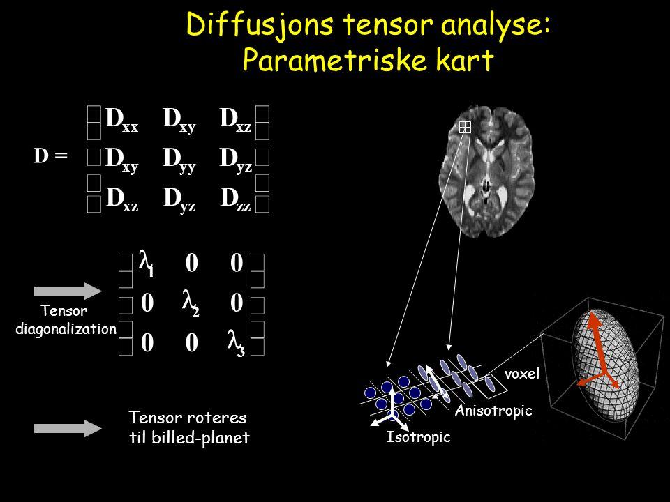 Diffusjons tensor analyse: Parametriske kart