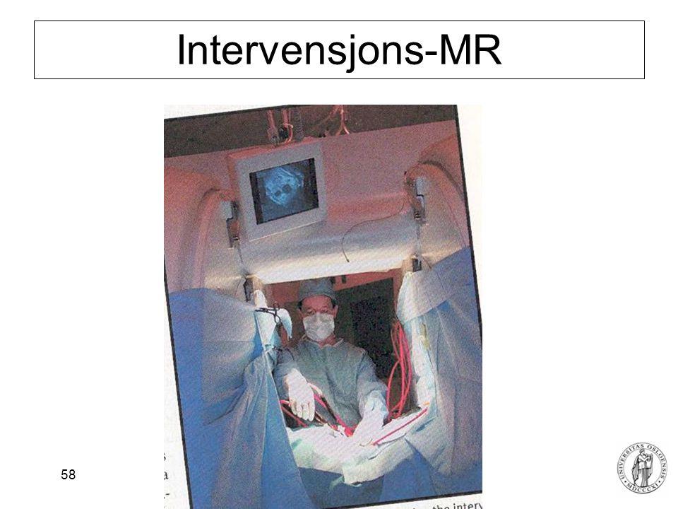 Intervensjons-MR